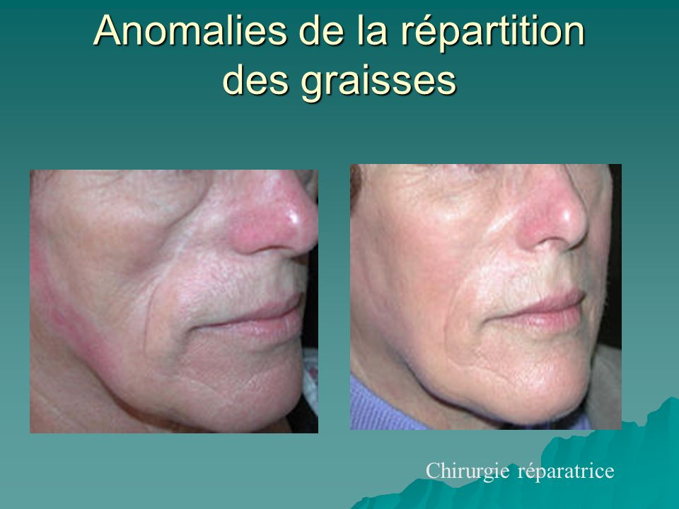 Chirurgie réparatrice