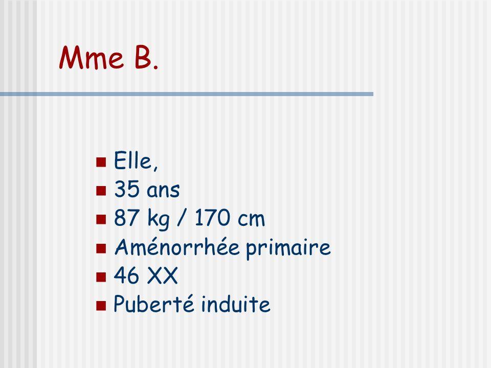Mme B. Elle, 35 ans 87 kg / 170 cm Aménorrhée primaire 46 XX Puberté induite