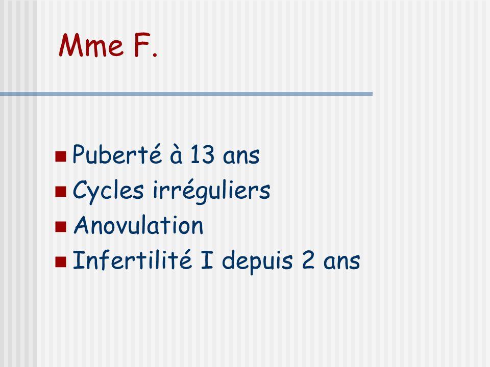 Mme F. Puberté à 13 ans Cycles irréguliers Anovulation Infertilité I depuis 2 ans