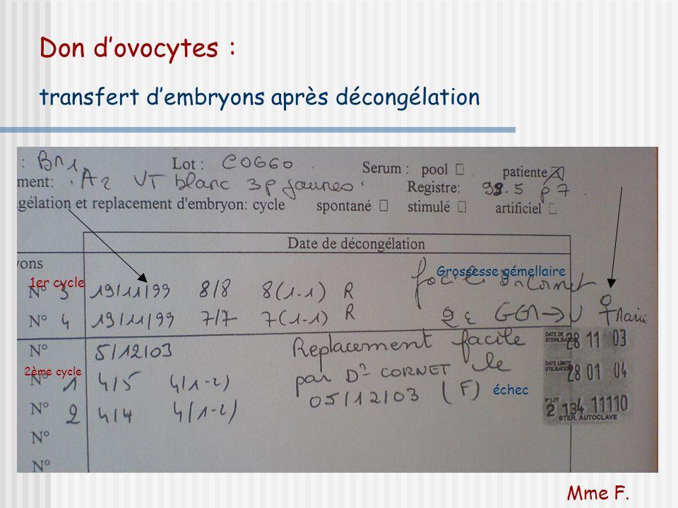 Don dovocytes : transfert dembryons après décongélation 1er cycle 2ème cycle Grossesse gémellaire échec Mme F.
