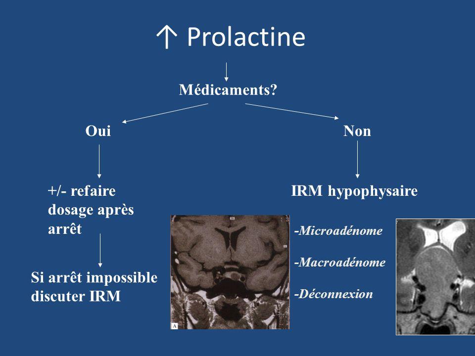 Macroprolactinémie A évoquer si : – Asymptomatique – Signes atypiques – IRM normale – Résistance aux agonistes dopaminergiques – Hyperprolactinémie persistante après chirurgie Test de référence : Chromatographie de filtration sur gel Alternative : précipitation par le polyéthylène glycol