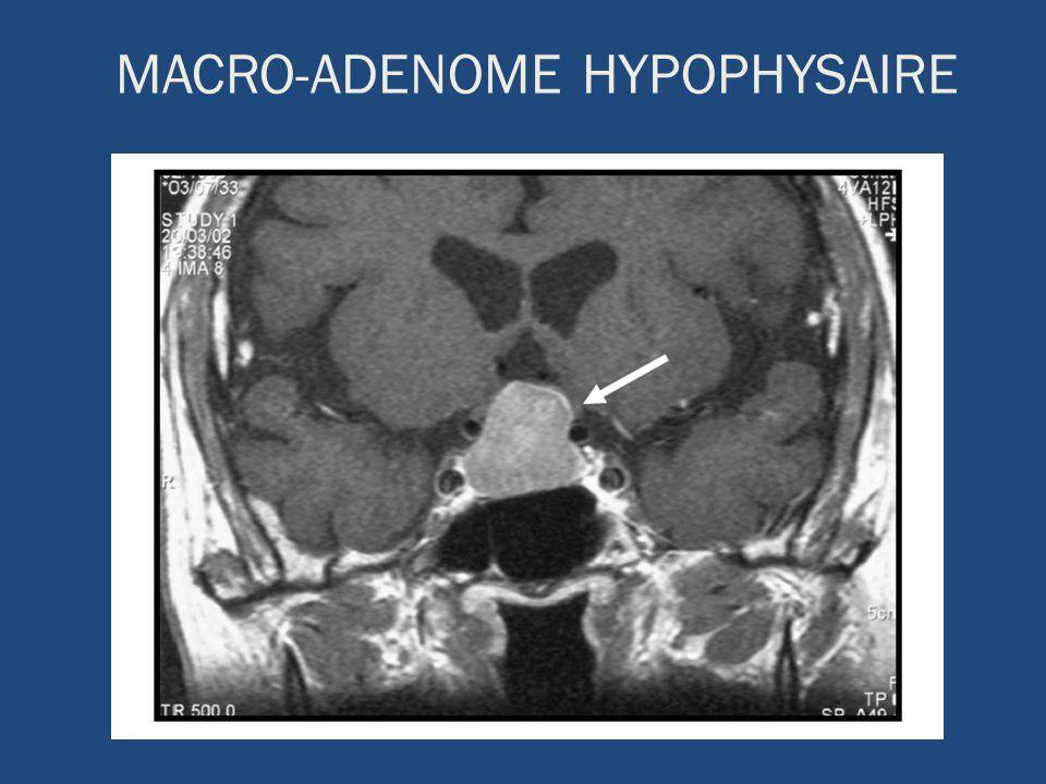 ADENOME HYPOPHYSAIRE GEANT Envahissement latéral des sinus caverneux Expansion supérieure comprimant le chiasme optique Invasion inférieure du sinus sphénoïdal