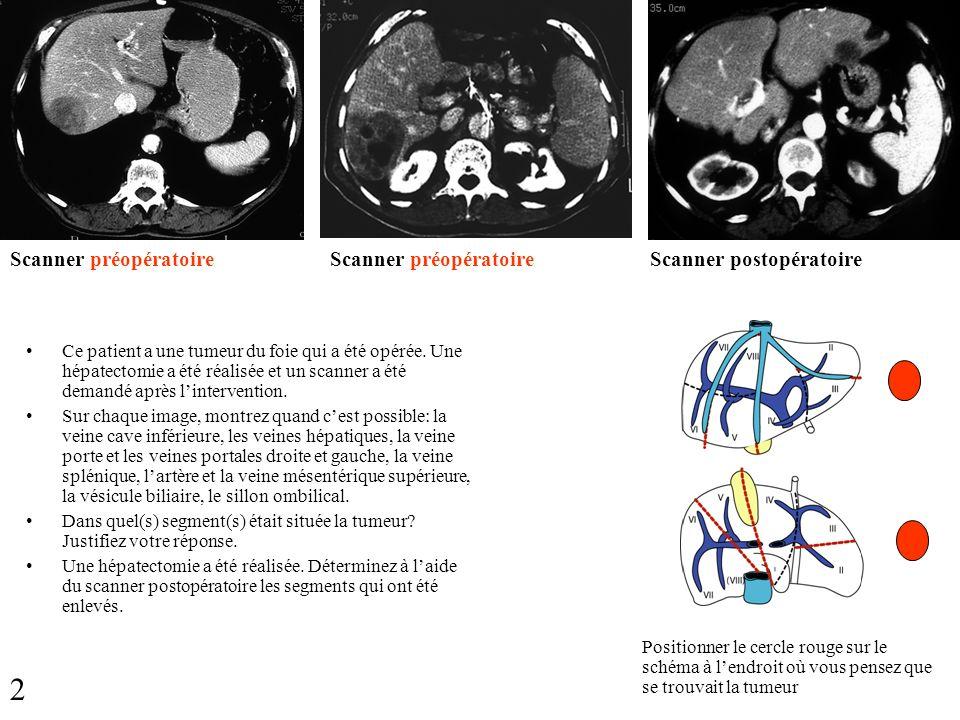 Scanner préopératoire Scanner postopératoire Ce patient a une tumeur du foie qui a été opérée. Une hépatectomie a été réalisée et un scanner a été dem