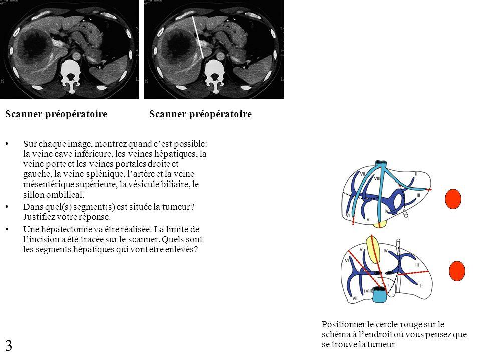 Scanner préopératoire Sur chaque image, montrez quand cest possible: la veine cave inférieure, les veines hépatiques, la veine porte et les veines por