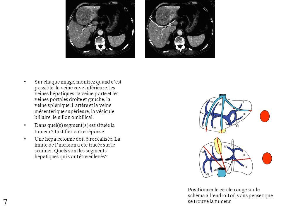 Sur chaque image, montrez quand cest possible: la veine cave inférieure, les veines hépatiques, la veine porte et les veines portales droite et gauche