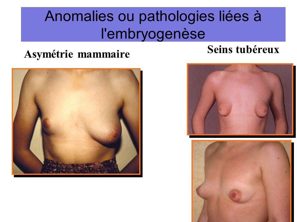 Anomalies ou pathologies liées à l'embryogenèse Seins tubéreux Asymétrie mammaire