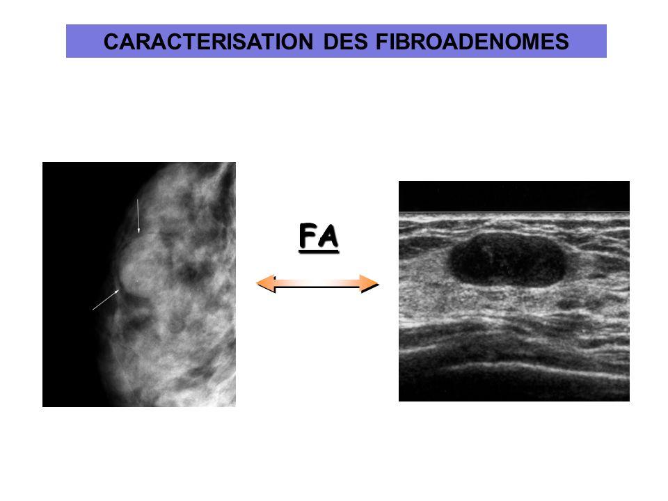 FA CARACTERISATION DES FIBROADENOMES