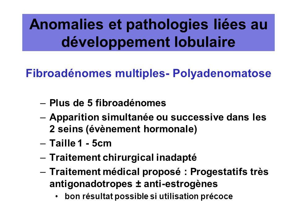 Anomalies et pathologies liées au développement lobulaire Fibroadénomes multiples- Polyadenomatose –Plus de 5 fibroadénomes –Apparition simultanée ou
