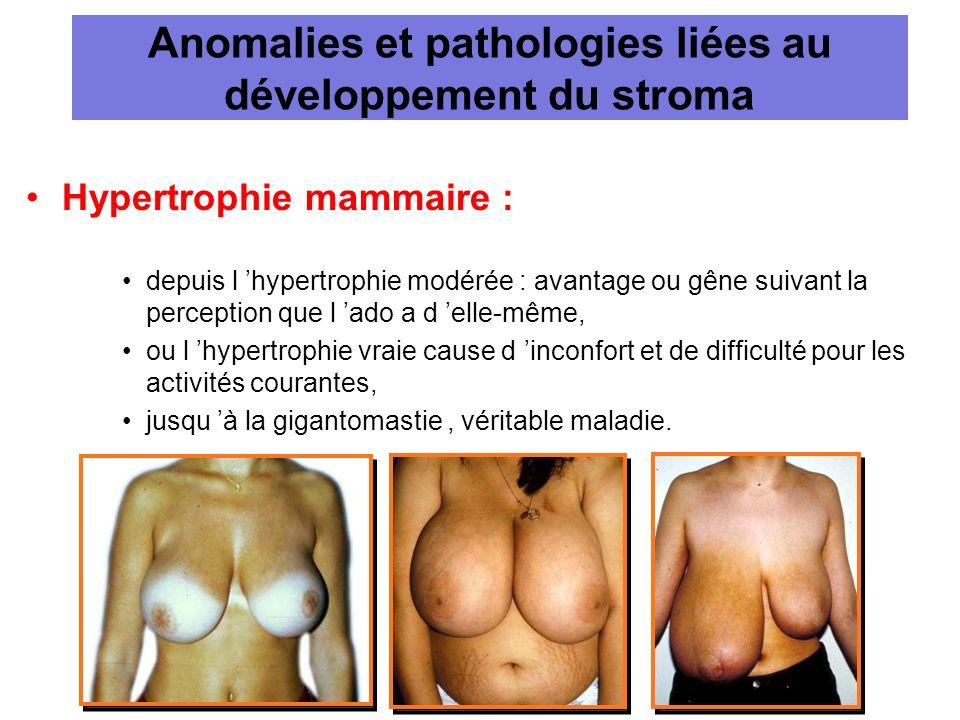 Anomalies et pathologies liées au développement du stroma Hypertrophie mammaire : depuis l hypertrophie modérée : avantage ou gêne suivant la percepti