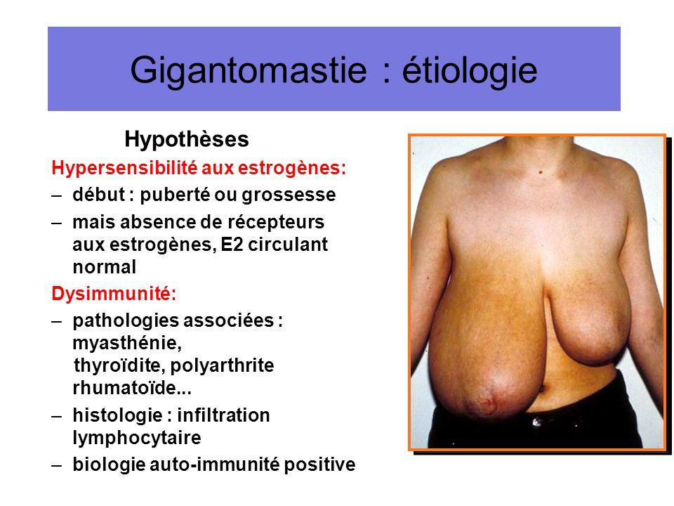 Gigantomastie : étiologie Hypothèses Hypersensibilité aux estrogènes: –début : puberté ou grossesse –mais absence de récepteurs aux estrogènes, E2 cir
