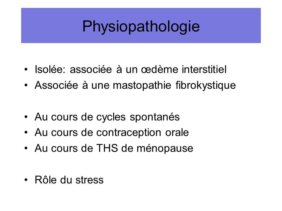Physiopathologie Isolée: associée à un œdème interstitiel Associée à une mastopathie fibrokystique Au cours de cycles spontanés Au cours de contracept