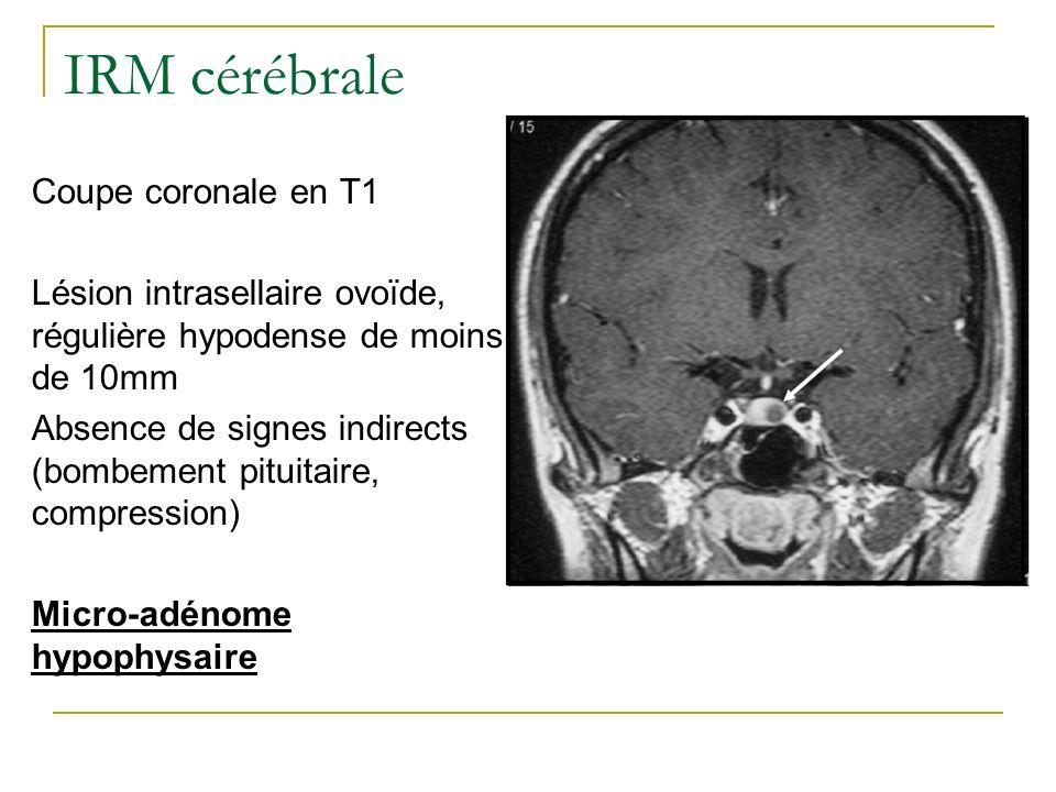 IRM cérébrale Coupe coronale en T1 Lésion intrasellaire ovoïde, régulière hypodense de moins de 10mm Absence de signes indirects (bombement pituitaire
