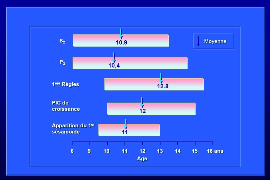 11 12 13 14 15 16 ans 8 8 9 9 10 11 12 12.8 10,4 10,9 S2S2 S2S2 P2P2 P2P2 1 ère Règles PIC de croissance Apparition du 1 er sésamoïde Moyenne Age