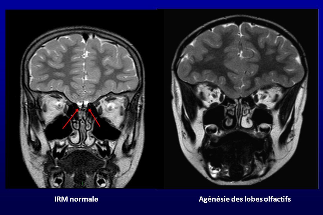 IRM normaleAgénésie des lobes olfactifs