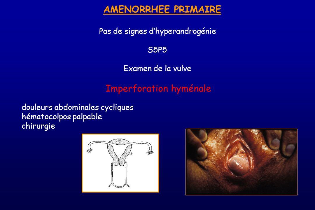 AMENORRHEE PRIMAIRE Pas de signes dhyperandrogénie S5P5 Examen de la vulve Imperforation hyménale douleurs abdominales cycliques hématocolpos palpable