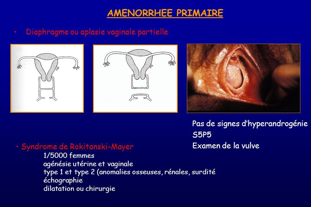 Syndrome de Rokitanski-Mayer 1/5000 femmes agénésie utérine et vaginale type 1 et type 2 (anomalies osseuses, rénales, surdité échographie dilatation