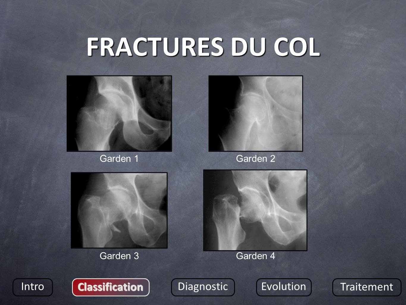 FRACTURES DU COL Intro Classification DiagnosticEvolution Traitement Garden 1Garden 2 Garden 3Garden 4