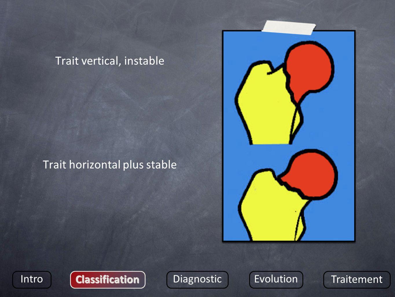 Trait vertical, instable Trait horizontal plus stable Intro Classification DiagnosticEvolution Traitement