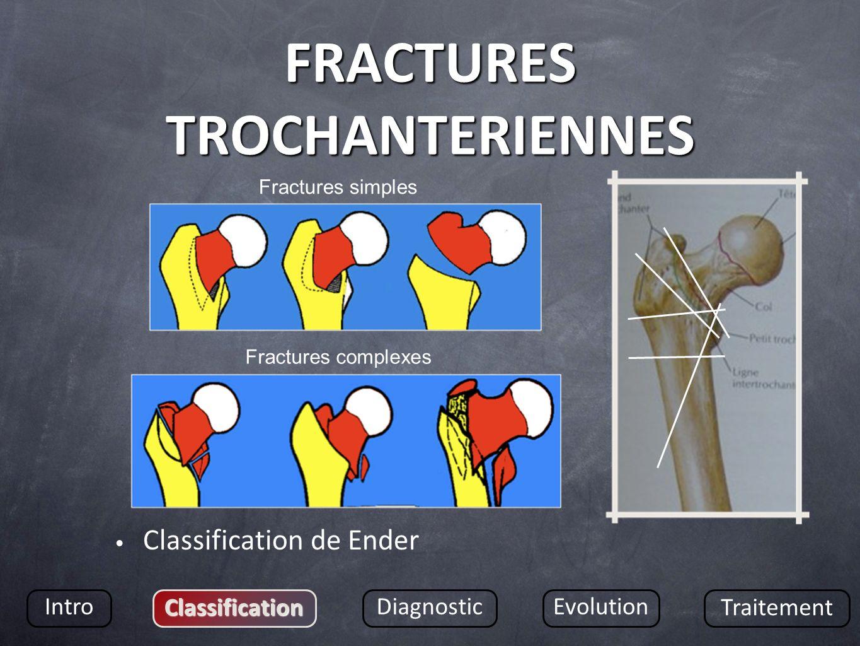 FRACTURES TROCHANTERIENNES Classification de Ender Intro Classification DiagnosticEvolution Traitement Fractures simples Fractures complexes