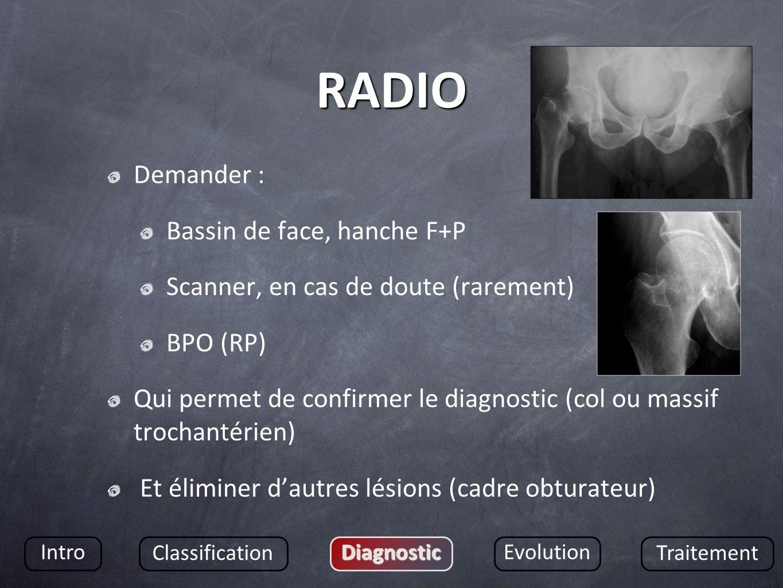 RADIO Demander : Bassin de face, hanche F+P Scanner, en cas de doute (rarement) BPO (RP) Qui permet de confirmer le diagnostic (col ou massif trochant