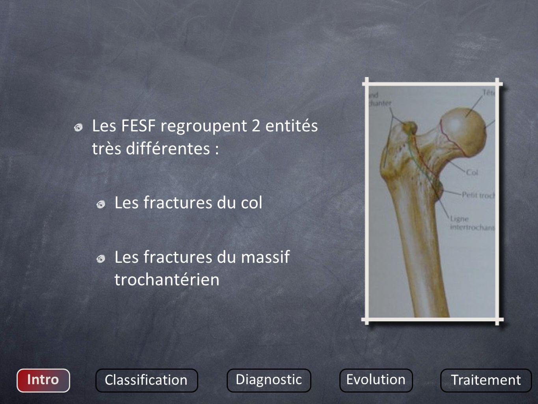 Les FESF regroupent 2 entités très différentes : Les fractures du col Les fractures du massif trochantérien Intro Classification DiagnosticEvolution Traitement