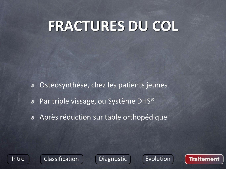 FRACTURES DU COL Ostéosynthèse, chez les patients jeunes Par triple vissage, ou Système DHS® Après réduction sur table orthopédique Intro Classification DiagnosticEvolution Traitement