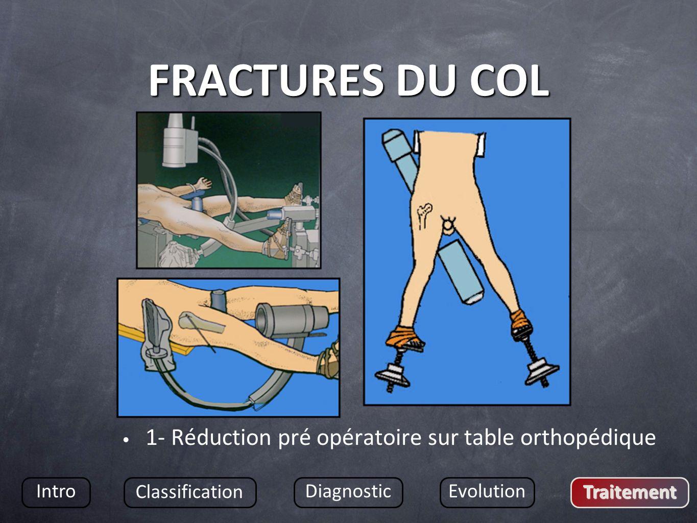FRACTURES DU COL 1- Réduction pré opératoire sur table orthopédique Intro Classification DiagnosticEvolution Traitement