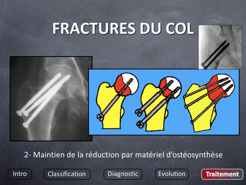 FRACTURES DU COL Intro Classification DiagnosticEvolution Traitement 2- Maintien de la réduction par matériel dostéosynthèse