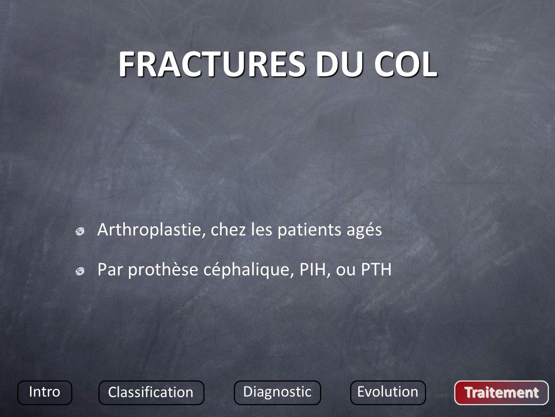 FRACTURES DU COL Arthroplastie, chez les patients agés Par prothèse céphalique, PIH, ou PTH Intro Classification DiagnosticEvolution Traitement