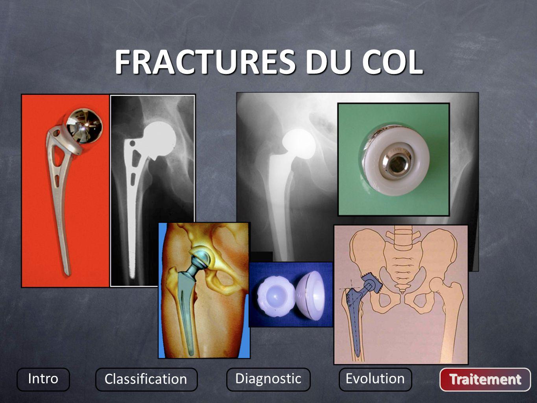 FRACTURES DU COL Intro Classification DiagnosticEvolution Traitement