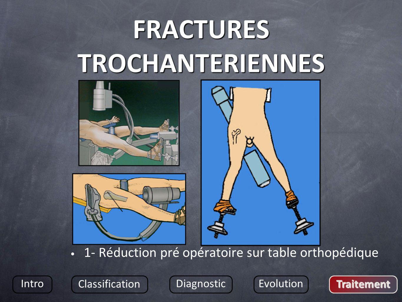 FRACTURES TROCHANTERIENNES 1- Réduction pré opératoire sur table orthopédique Intro Classification DiagnosticEvolution Traitement