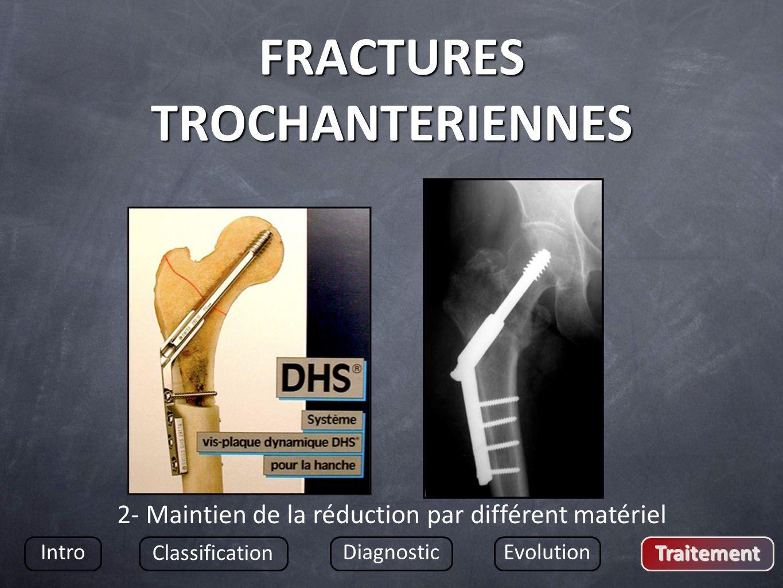 FRACTURES TROCHANTERIENNES Intro Classification DiagnosticEvolution Traitement 2- Maintien de la réduction par différent matériel