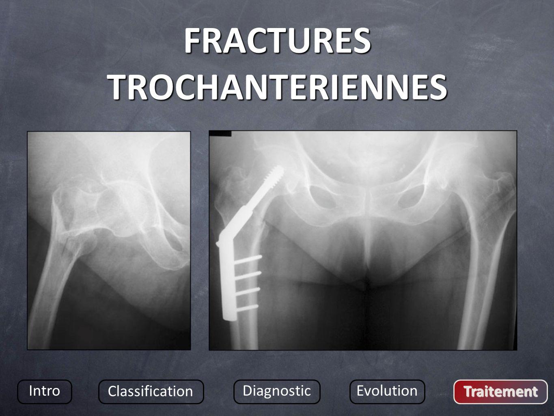 FRACTURES TROCHANTERIENNES Intro Classification DiagnosticEvolution Traitement
