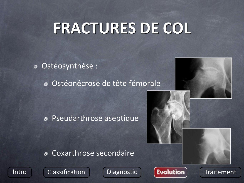 FRACTURES DE COL Ostéosynthèse : Ostéonécrose de tête fémorale Pseudarthrose aseptique Coxarthrose secondaire Intro Classification DiagnosticEvolution Traitement