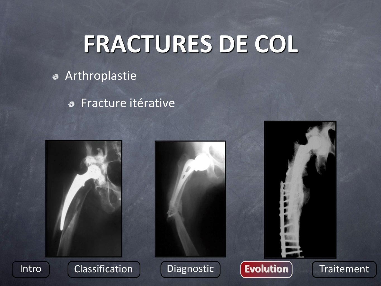 FRACTURES DE COL Arthroplastie Fracture itérative Intro Classification DiagnosticEvolution Traitement