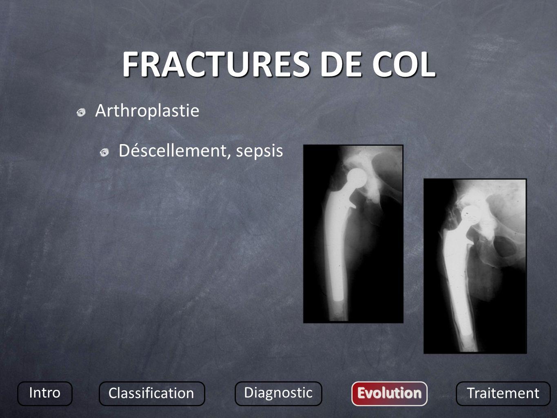 FRACTURES DE COL Arthroplastie Déscellement, sepsis Intro Classification DiagnosticEvolution Traitement