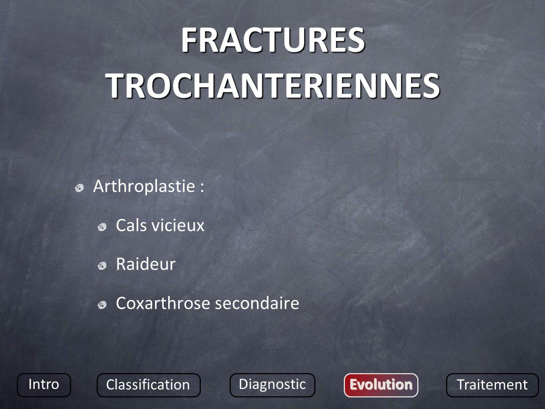 FRACTURES TROCHANTERIENNES Arthroplastie : Cals vicieux Raideur Coxarthrose secondaire Intro Classification DiagnosticEvolution Traitement
