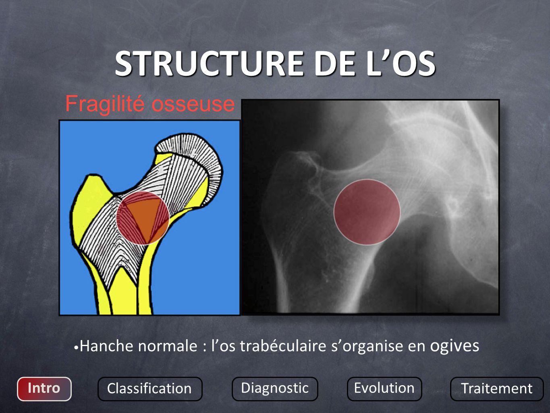 STRUCTURE DE LOS Hanche normale : los trabéculaire sorganise en ogives Intro Classification DiagnosticEvolution Traitement Fragilité osseuse