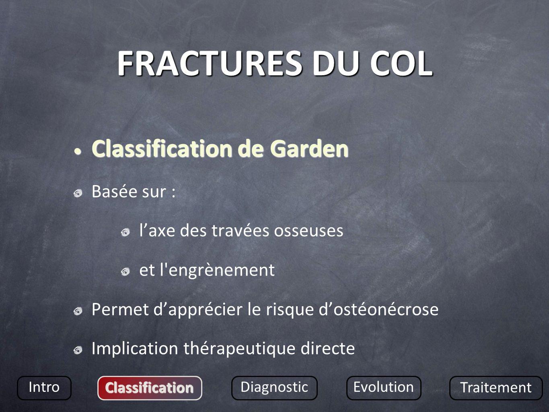 FRACTURES DU COL Classification de Garden Classification de Garden Basée sur : laxe des travées osseuses et l'engrènement Permet dapprécier le risque