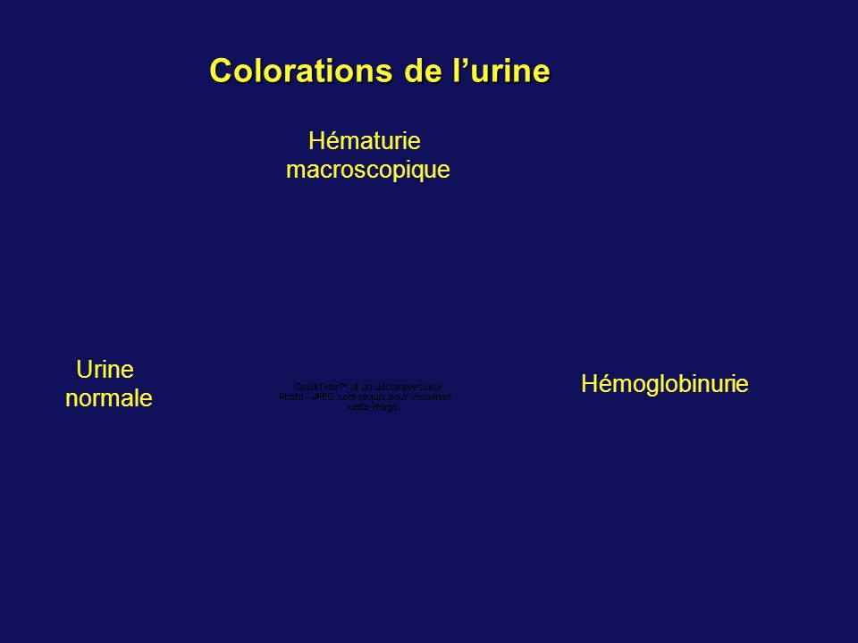 Colorations de lurine Urine normale Hématurie macroscopique Hémoglobinurie