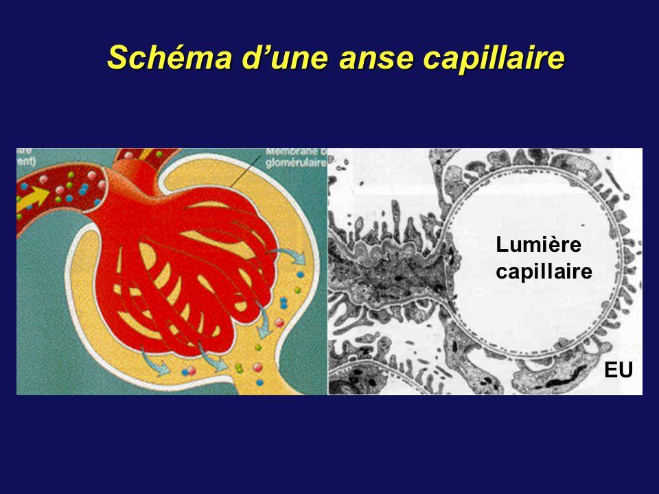 Hématurie microscopique Débit urinaire (compte d Addis) > 10 000 hématies /min Indécelable à l œil nu Dépistage systématique ou orienté (protéinurie): bandelettes réactives: grande sensibilité mais faux positifs+ signe habituellement une atteinte glomérulaire