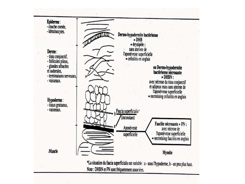 Diagnostic clinique Reconnaître un érysipèle typique Placard érythémateux inflammatoire Fièvre, adénopathie, lymphangite Début brutal +++