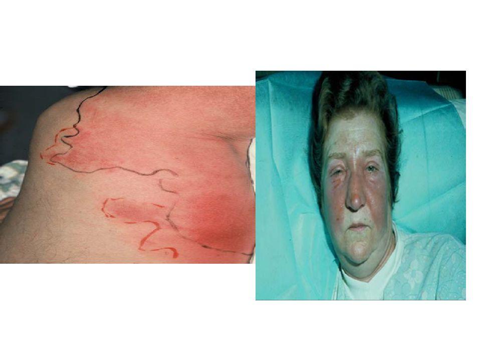 Diffusion des AB Mauvaises conditions locales : inoculum bactérien +++, réaction inflammatoire +++, oedème compressif, micro-thromboses vasculaires, acidose, anaérobiose, nécrose tissulaire, pus… Pertes sanguines dAB au cours de la chirurgie Mauvaises conditions générales: choc septique, Insrénale, hépatique, ….catécholamines… ---> Que reste til comme concentration AB libre dans le liquide interstitiel tissulaire où se situent les bactéries .