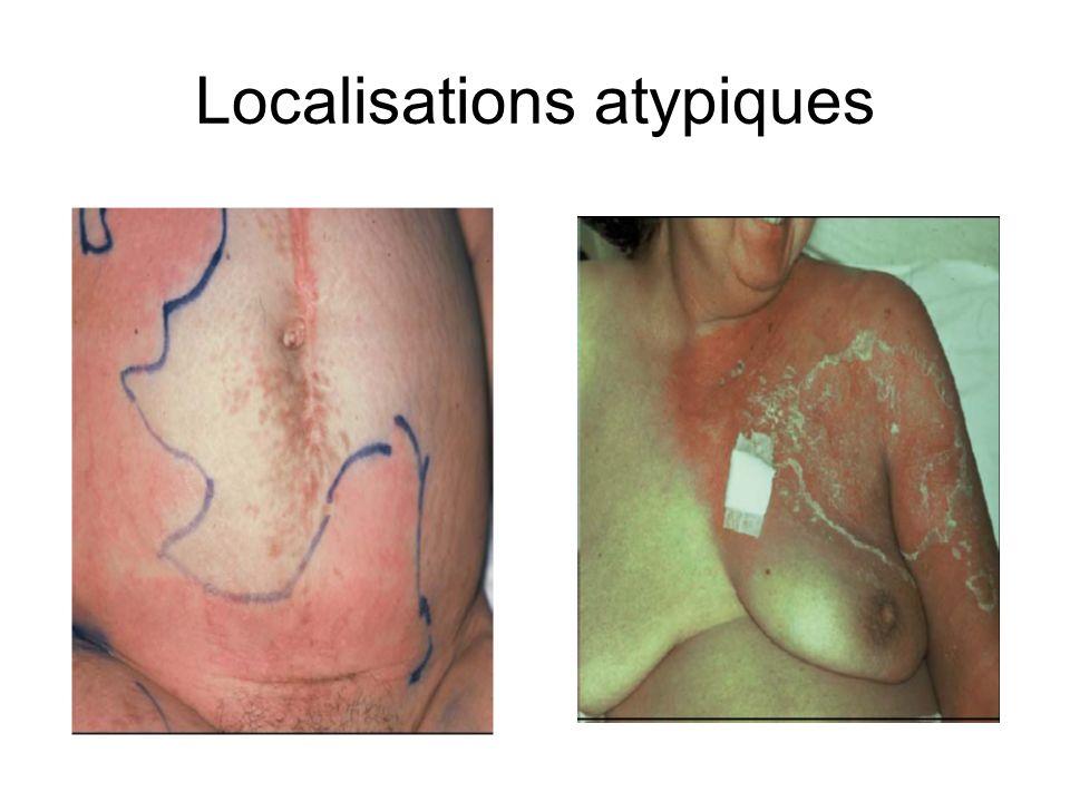Facteurs de risque de l érysipèle de jambe Lymphoedème Porte d entrée Insuffisance veineuse OMI Surpoids Diabète et alccolisme ne sont pas associés à l érysipèle.