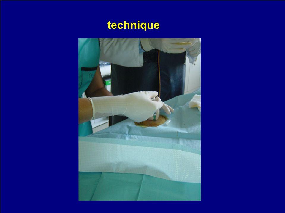 matériel anesthésique corticoïde