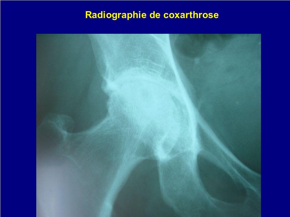 Radiographie de coxarthrose