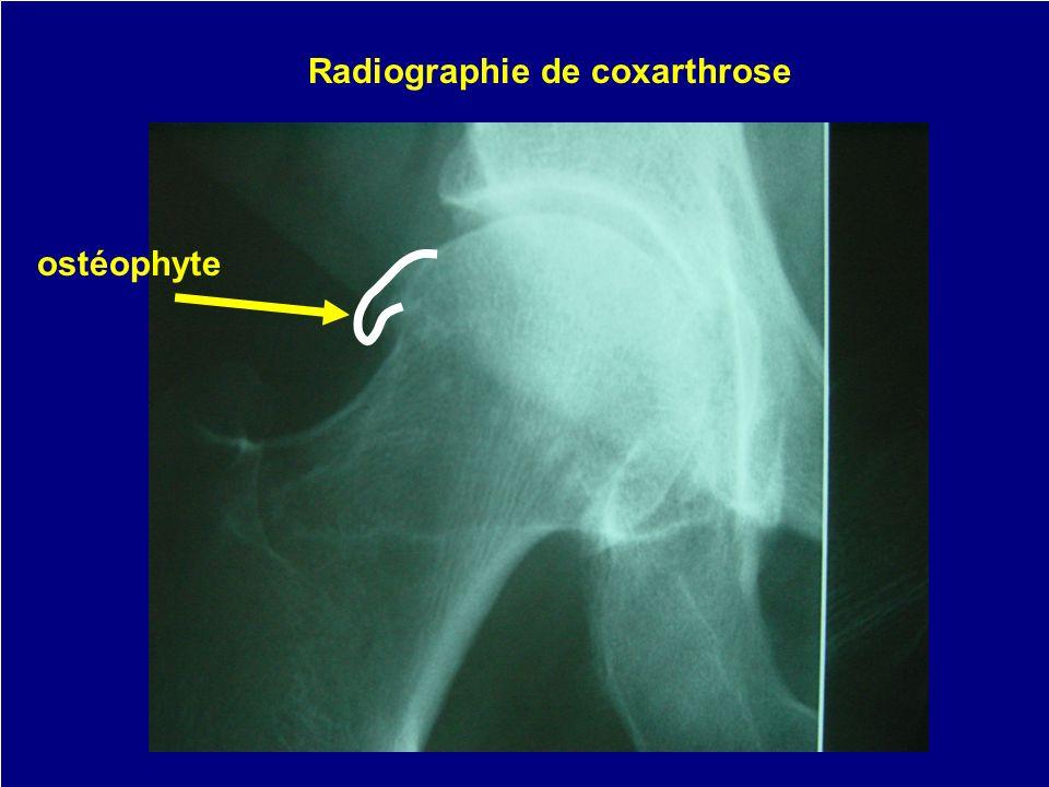 ostéophyte