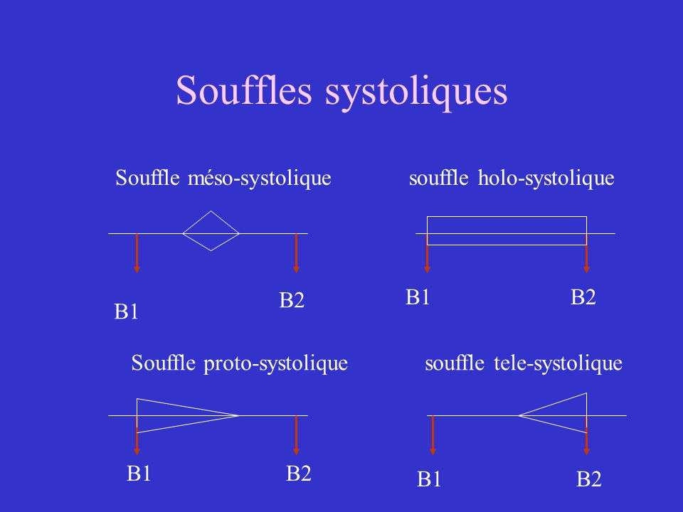Souffles systoliques B1 B2 Souffle méso-systolique souffle holo-systolique Souffle proto-systolique souffle tele-systolique