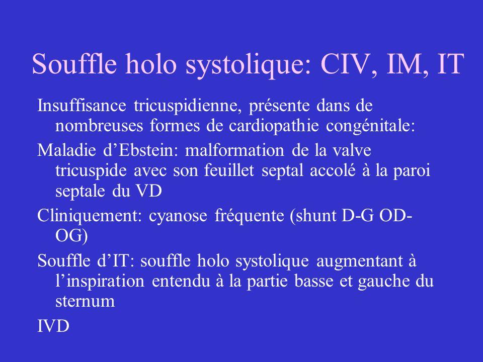 Souffle holo systolique: CIV, IM, IT Insuffisance tricuspidienne, présente dans de nombreuses formes de cardiopathie congénitale: Maladie dEbstein: ma
