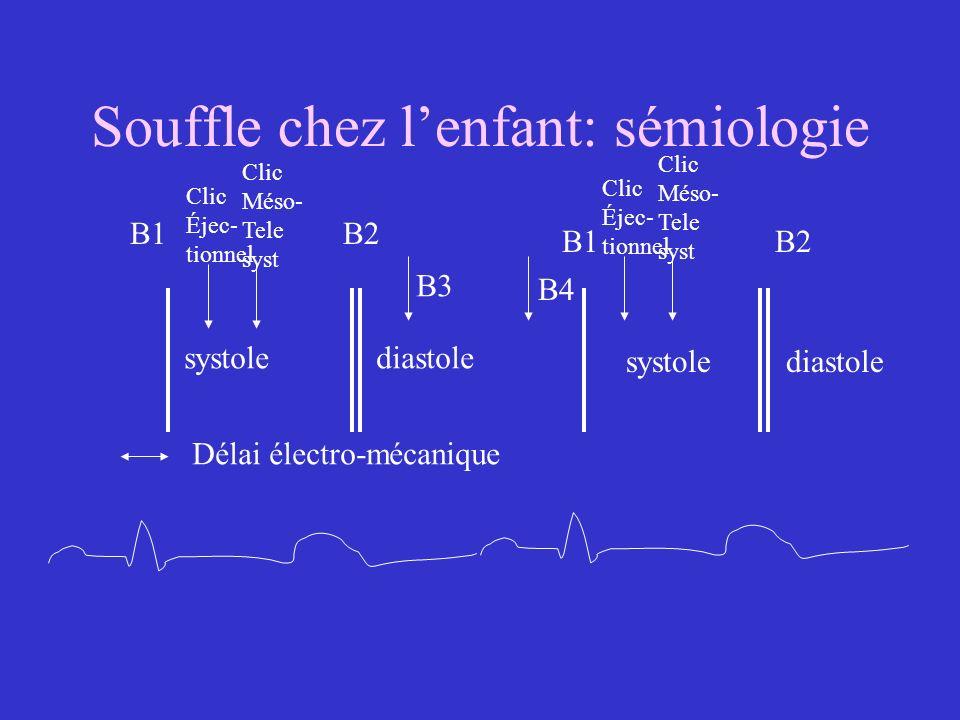 Souffle chez lenfant: sémiologie B1 B2 systolediastole systole Délai électro-mécanique B3 B4 Clic Éjec- tionnel Clic Méso- Tele syst Clic Éjec- tionne